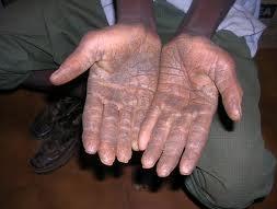 mani-sporche